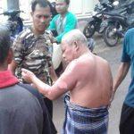 TERLUKA: Tata Suparta (55) warga Kampung Cibarengkok, RT 1/1, Desa Cimanggu, Kecamatan Cikembar, Kabupaten Sukabumi, yang merupakan korban ledakan gas melon mengalami luka bakar di bagian tubuhnya.  FOTO: DENDI/RADAR SUKABUMI