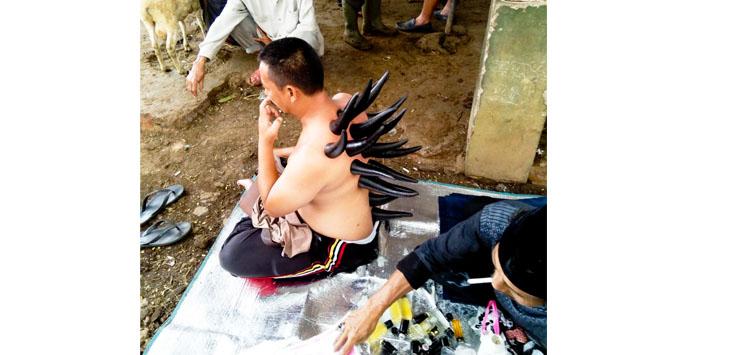 Dibekam : Unik Ektrem Terapi Pijat Bekam Pakai Tanduk Banteng
