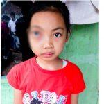 MEMBENGKAK: Tumor dipelipis mata kanan Risma makin membesar