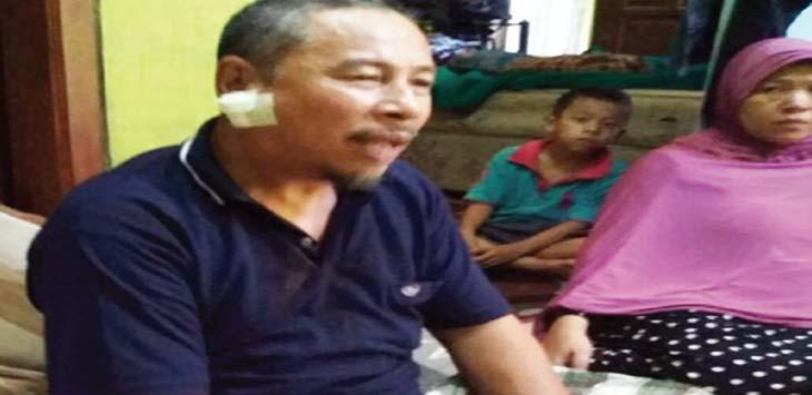 TERLUKA: Abdul Rachman (52), mengalami luka di bagian leher dekat pipi kanan, usai ditusuk pelaku. Dicky/Radar Depok