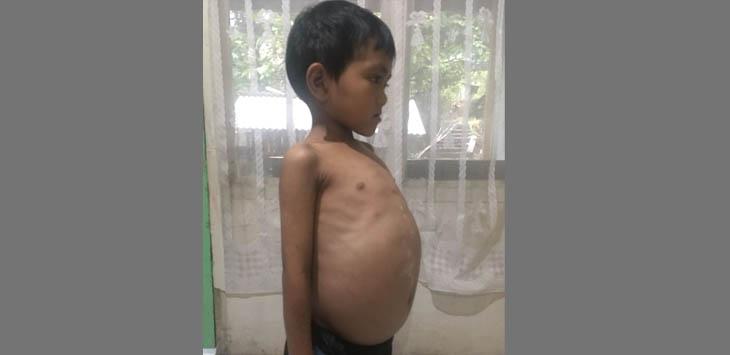 TULANG RUSUK MENONJOL: Anak berusia tujuh tahun warga Kecamatan Sukanegara, Jihad tubuhnya kurus. Hanya pada bagian perut yang terlihat besar tak normal.