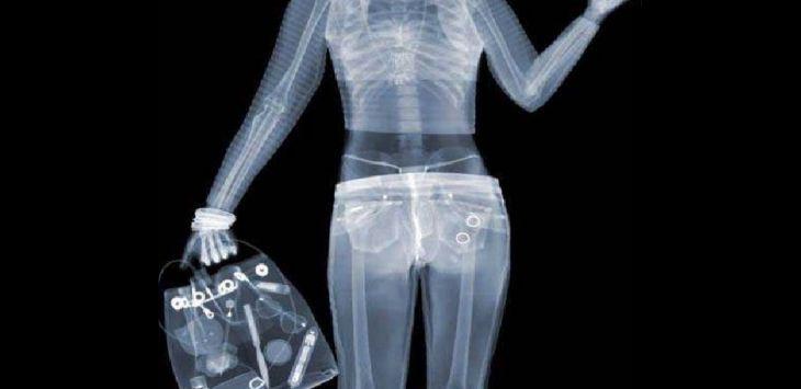 X-ray (ilustrasi)