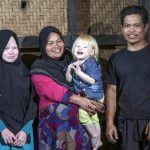 Dari kini: Dewi Resmana,13, Siti Rohmah, 33, Jajang Gunawan 2,5; Ujang Nana Suryana, 33, salah satu keluarga keturunan Albino di Desa Ciburuy, Jawa Barat.