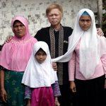 Keluarga keturunan Albino: Siti Rohmah, 36, Rahma Ayu Ningsih, 8, Isur Suryana, 41; dan Ai Romiati (14) salah satu keluarga keturunan Albino di Desa Ciburuy, Jawa Barat.