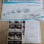 Hasil pemeriksaan laboratorium bayi Khayla Ulwa Fayyiah