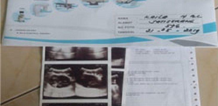 Hasil pemeriksaan laboratorium bayi Khayla Ulwa Fayyiah./Foto: Rmol