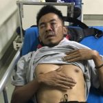 Salah seorang warga Bantarjati Tegal Gundil Bogor Utara yang babak belur (ist)