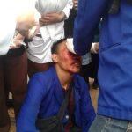 Mahasiswa terluka dipukul aparat polisi saat demo di gedung DPR RI (fir)