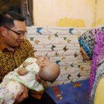 RK Berharap Bayi Kembar Siam Bekasi Segera Dioperasi