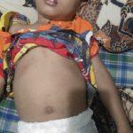 Bocah penderita radang usus kronis