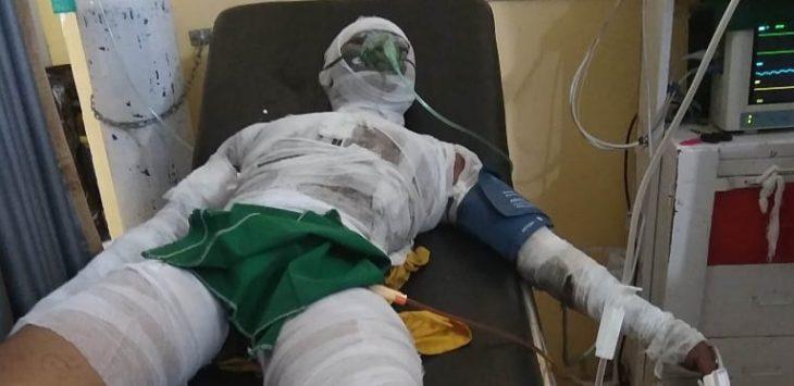 Salah satu korban luka bakar pabrik PT Indo Tama yang mengalami luka bakar sekitar 80%, saat di rawat di salah satu rumah sakit.